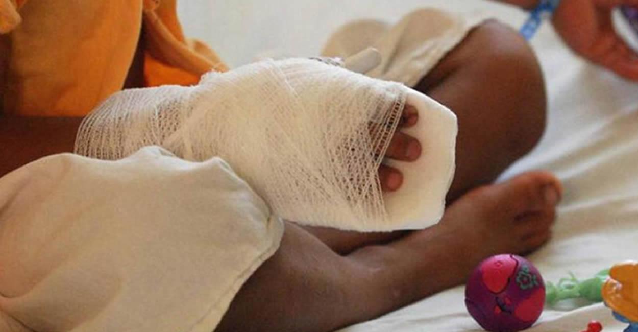 Procuraduría pide fortalecer estrategias para prevenir niños lesionados con pólvora durante halloween y festividades de fin de año